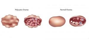 PCOの卵巣と通常の卵巣
